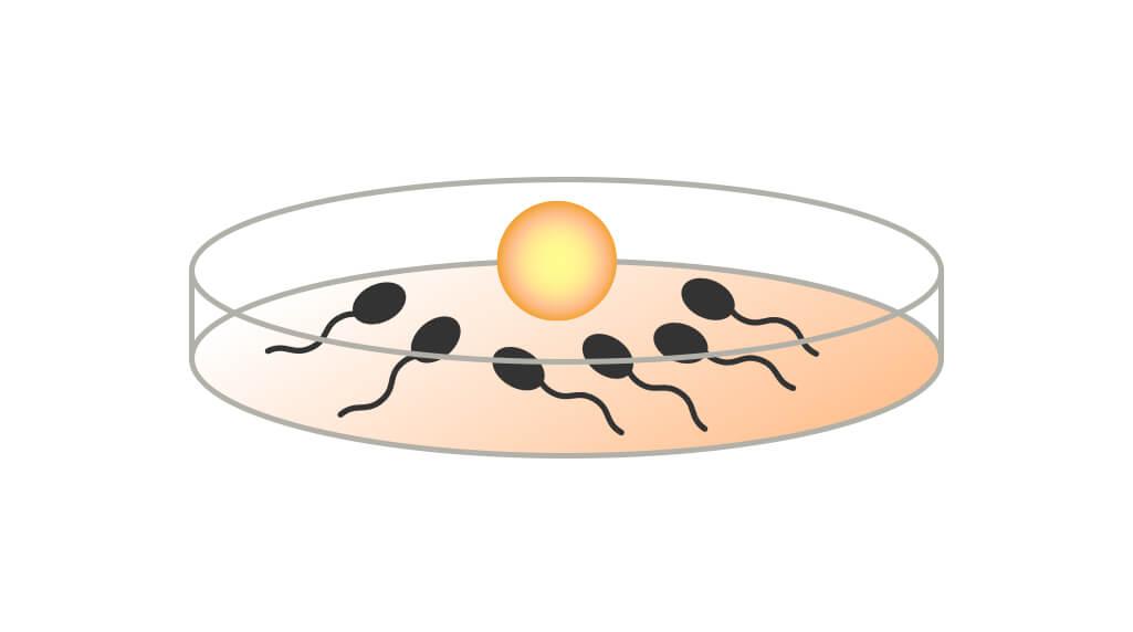 体外受精(IVF)